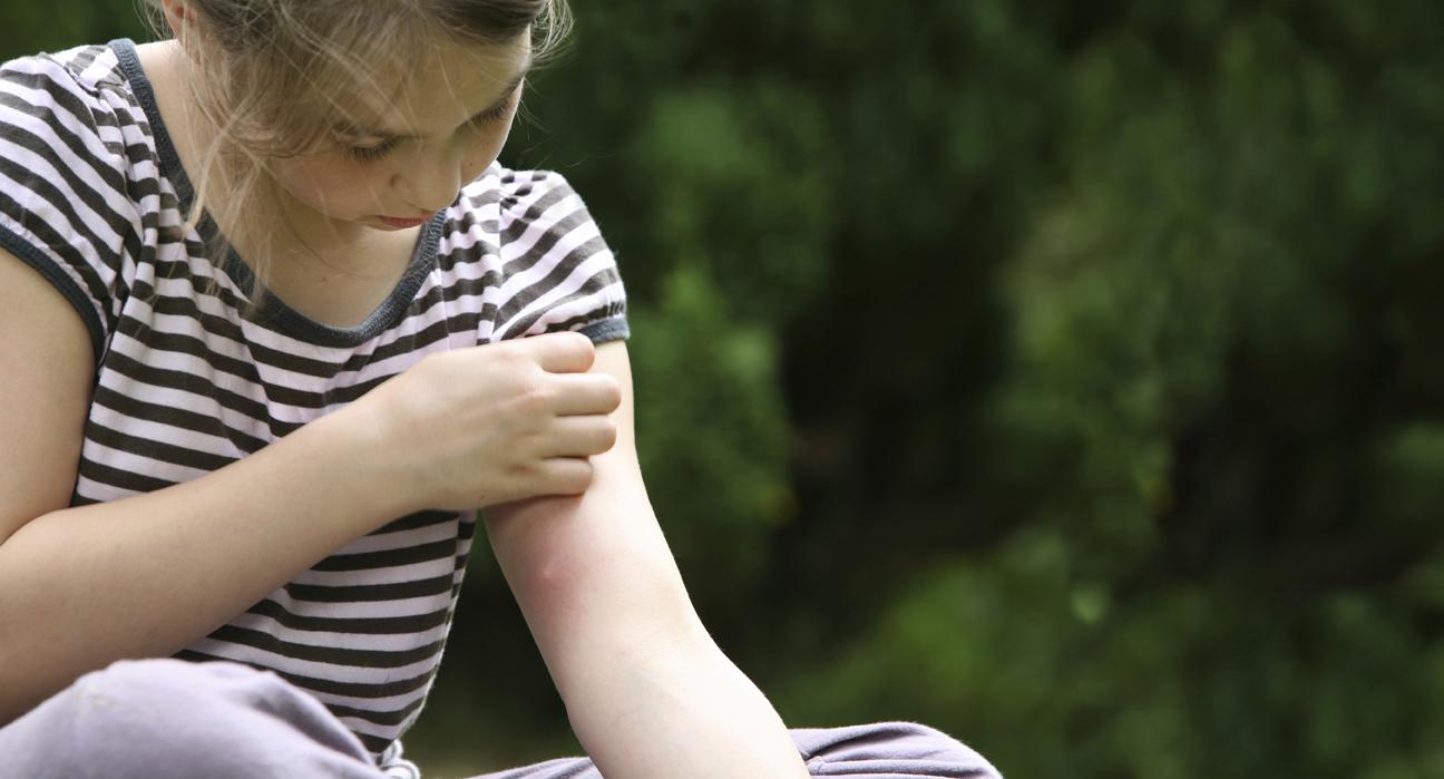 Боротьба з комарами